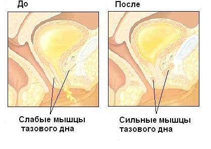 Мыщца тазового дна